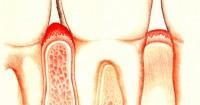 Воспаление дёсен лечение