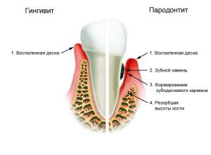 лечение генерализованного пародонтита